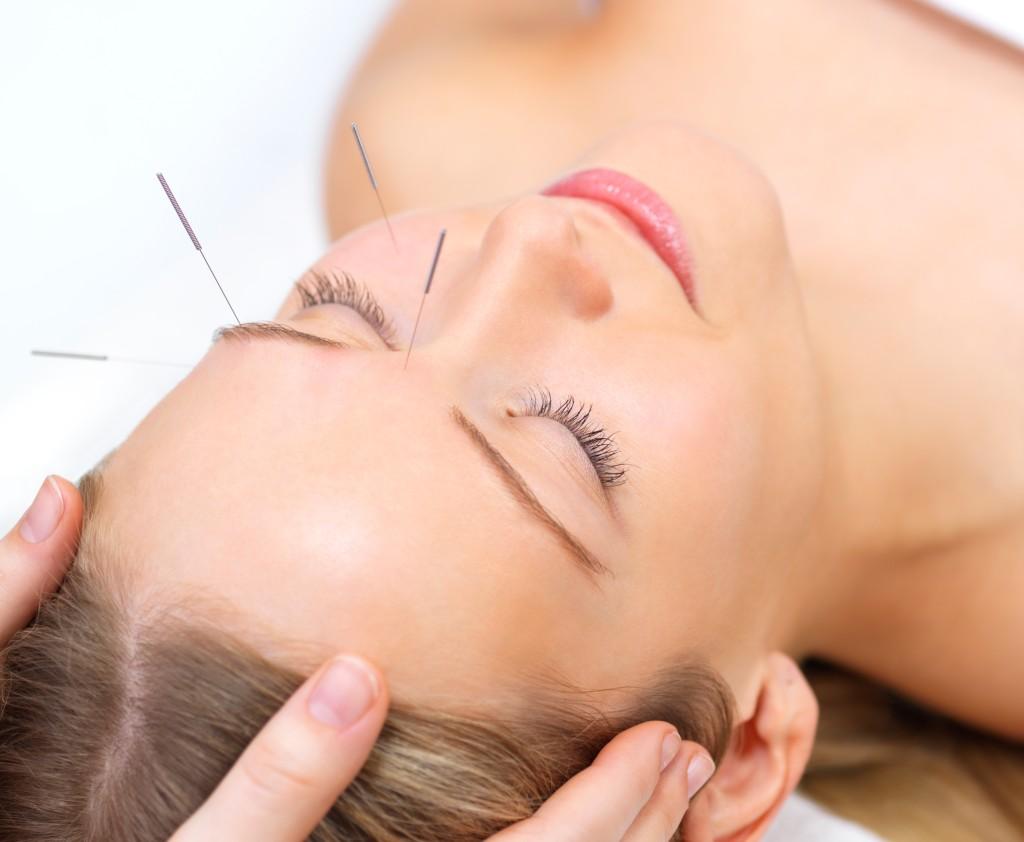 Akupunktura twarzy 1